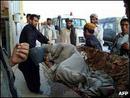 عکس: اتوبوس کارکنان وزارت دفاع افغانستان هدف بمبگذاری انتحاری قرار گرفت / افغانستان