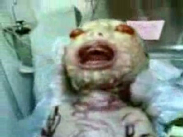 В Саудовской Аравии родился ребенок-змея с глазами наружу (фотосессия)