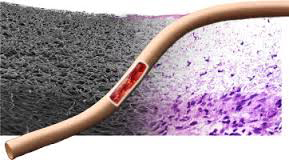 Arterial qanaxmanı dayandıran hidrogel hazırlanıb