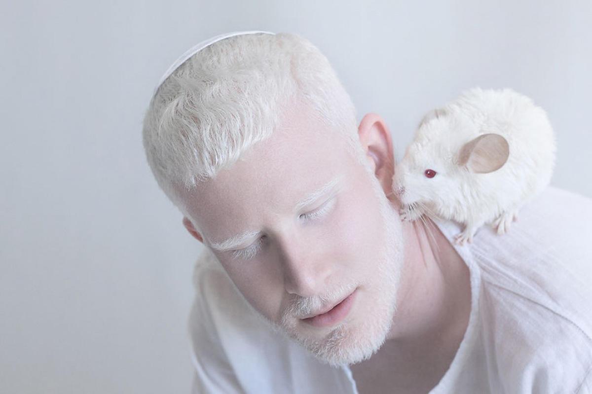 Albinoslara fərqli rakursdan baxış (FOTO)
